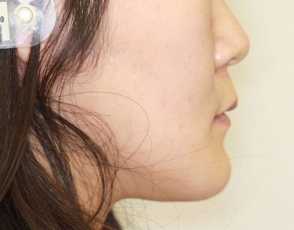 反対咬合治療後のあご
