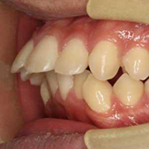 出っ歯の歯科矯正治療例