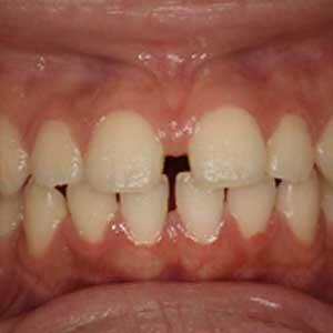 すきっ歯の歯科矯正治療例