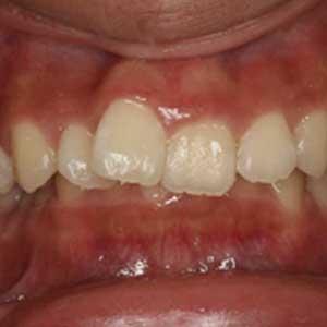過蓋咬合の歯科矯正治療例