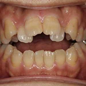 開咬の歯科矯正治療例