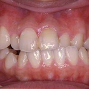 受け口の歯科矯正治療例