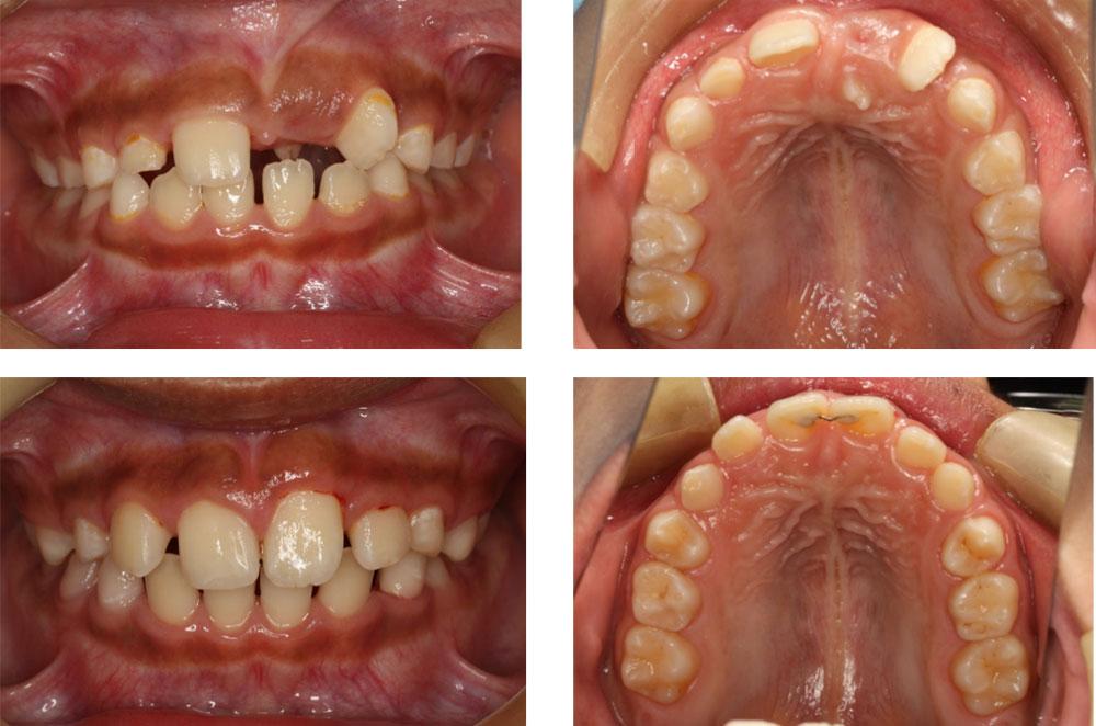 子どものすきっ歯の治療例