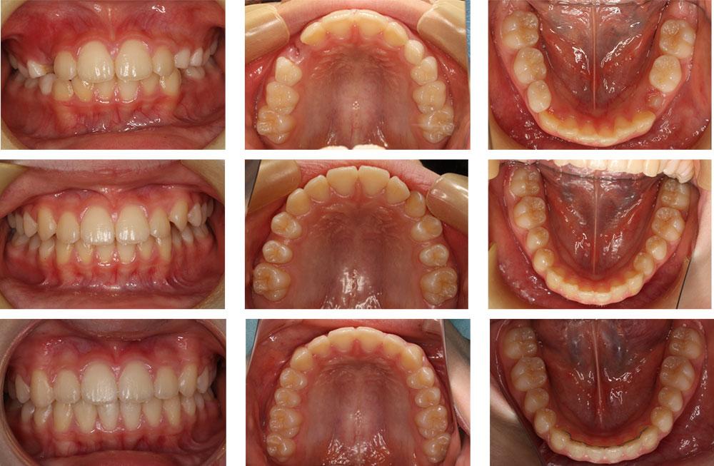 子どもの出っ歯の治療例