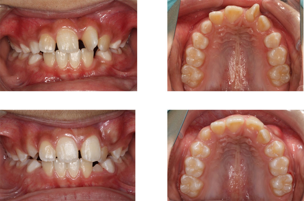 子供の八重歯・叢生の治療例