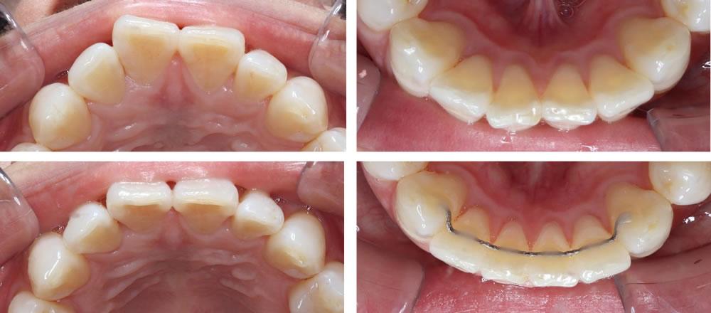 前歯の部分矯正(プチ矯正)の矯正治療例