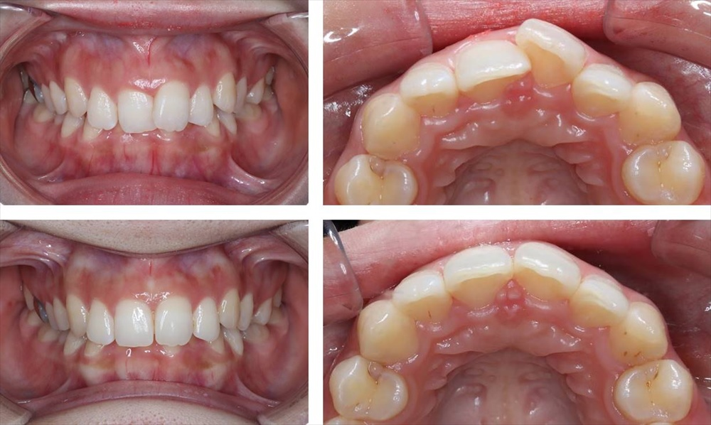 前歯の部分矯正(マウスピース矯正)の治療例(20代女性 治療期間5ヶ月)