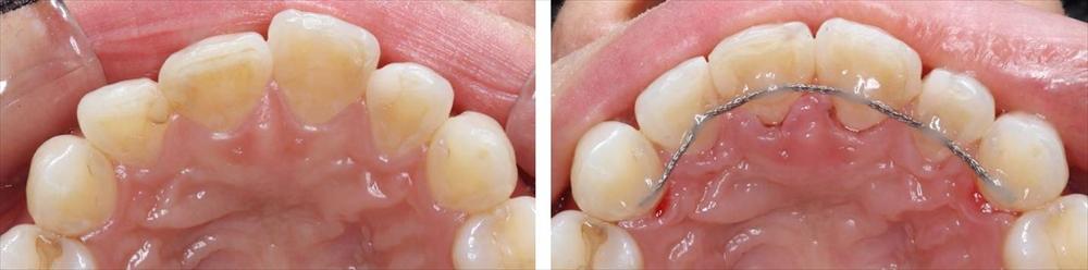 前歯の部分矯正の治療例(30代女性 治療期間4ヶ月半)