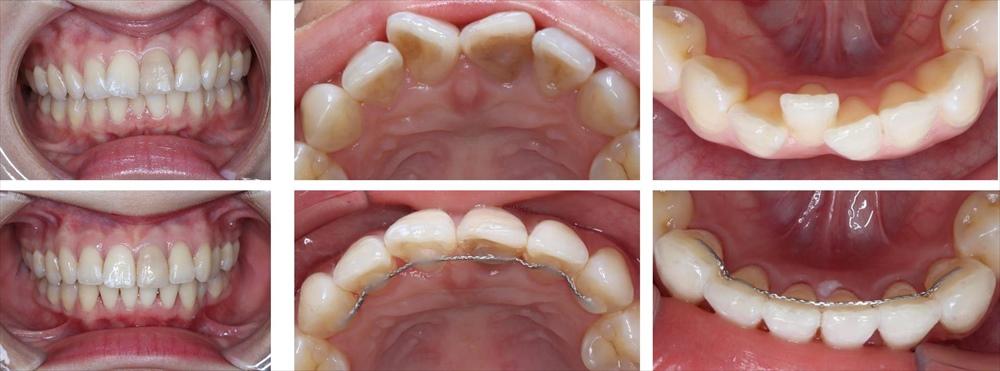 前歯の部分矯正の治療例(20代女性 治療期間7ヶ月)