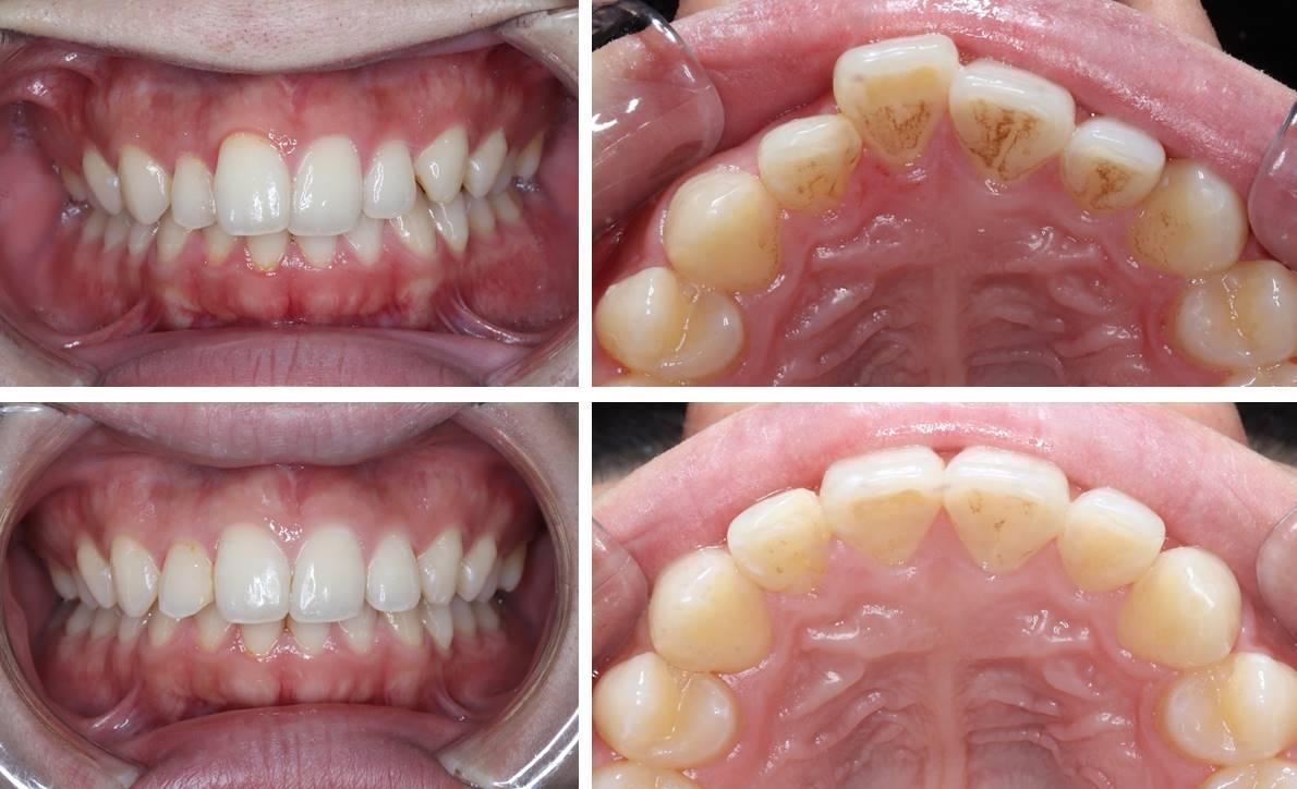 前歯の部分矯正の治療例(20代男性 治療期間4ヶ月)