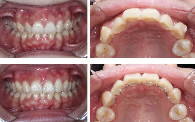 前歯の部分矯正(裏側矯正)の矯正治療例