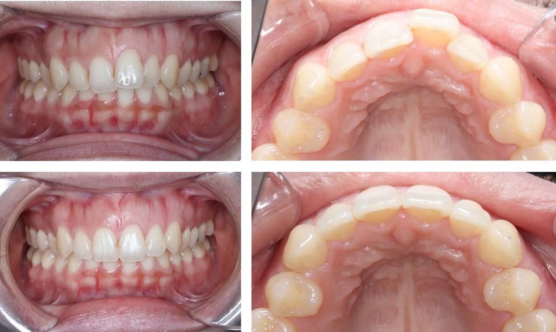 上の前歯のプチ矯正の治療例(20代女性 治療期間3ヶ月)