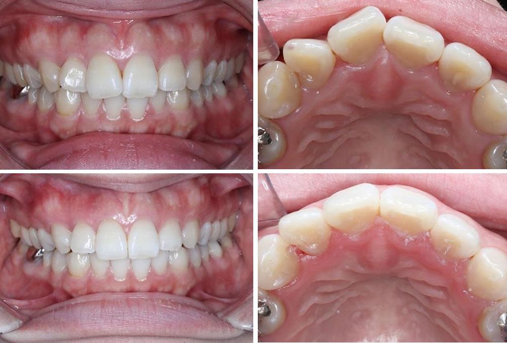 上の前歯の部分矯正の治療例(30代女性 治療期間11ヶ月)