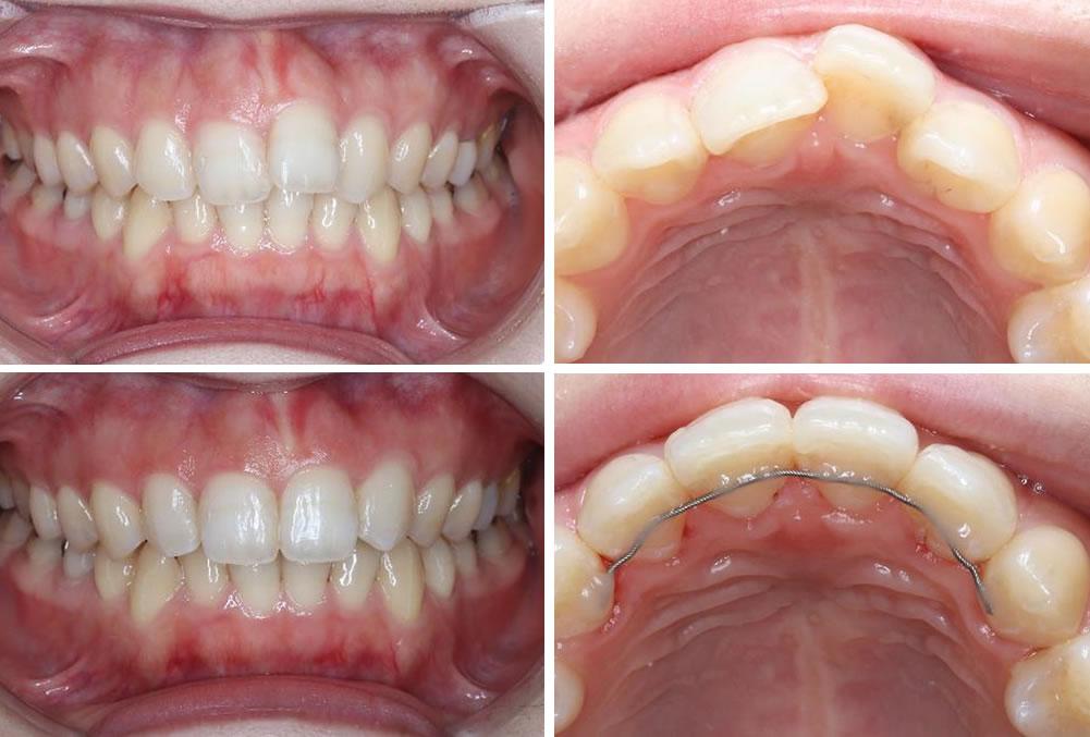 上の前歯の部分矯正の治療例(20代女性 治療期間5ヶ月)