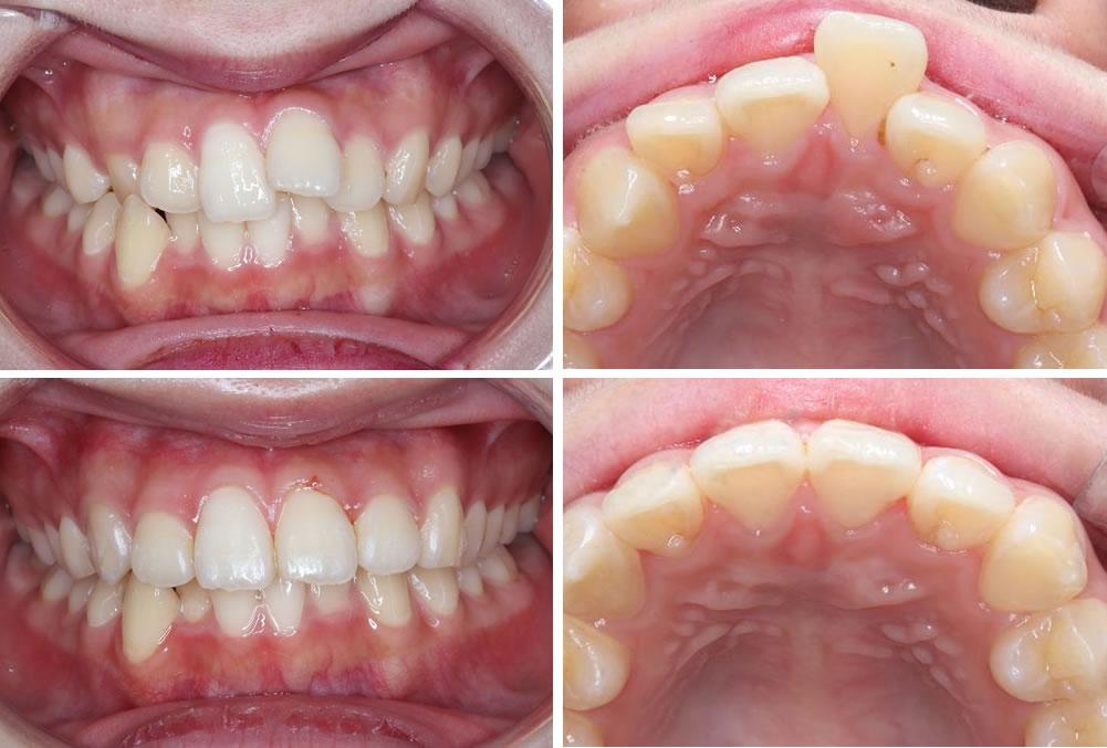 上の前歯の部分矯正の治療例(20代女性 治療期間6ヶ月)