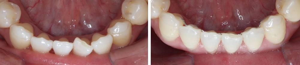 前歯の部分矯正(プチ矯正)の治療例(20代女性 治療期間4ヶ月)