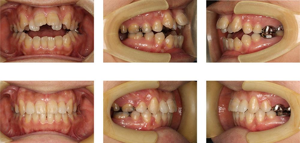 開咬の治療例