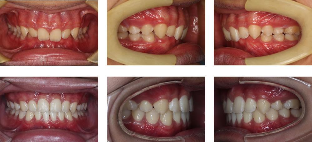 過蓋咬合の矯正治療例(10代男性 治療期間3年5ヶ月)