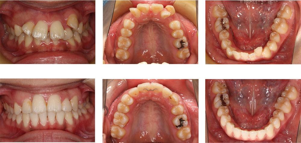 すきっ歯の治療例