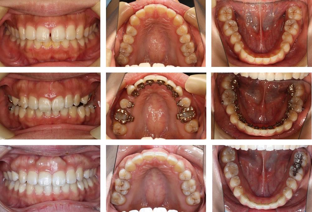 すきっ歯の矯正治療例(10代女性 治療期間6年2ヶ月)