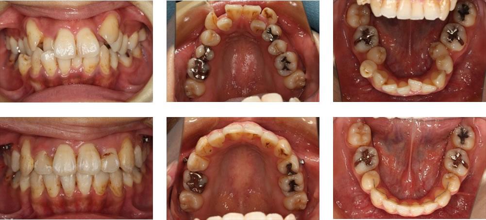 八重歯・叢生の矯正治療例(30代女性 治療期間2年)