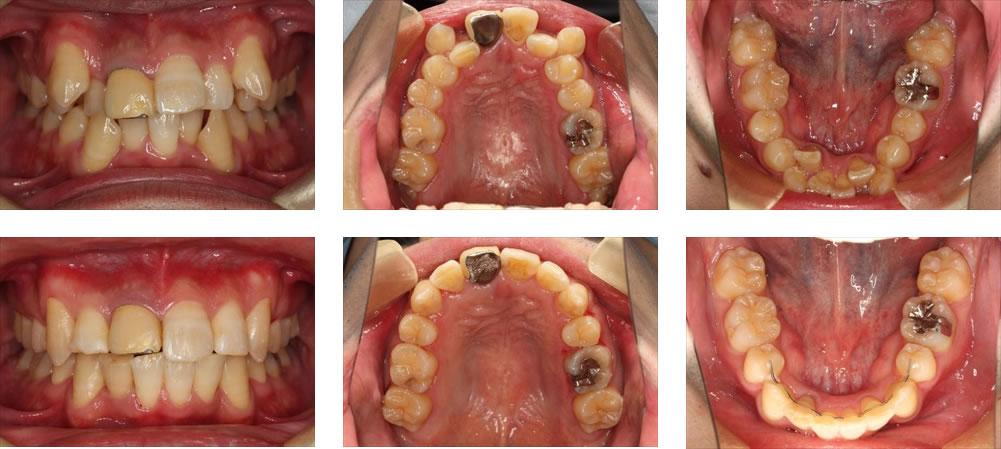 八重歯・叢生の矯正治療例(30代男性 治療期間1年10ヶ月)