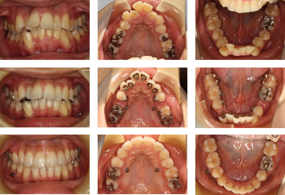八重歯・叢生の矯正治療例(30代女性 治療期間4年2ヶ月)