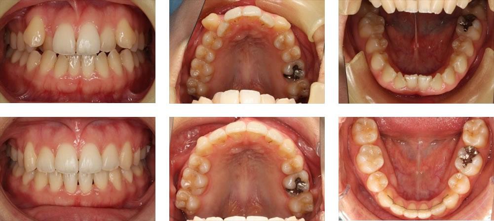 八重歯・叢生の矯正治療例(20代女性 治療期間4年10ヶ月)