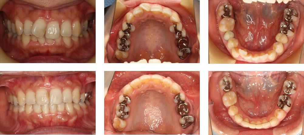 八重歯・叢生の矯正治療例(40代女性 治療期間1年11ヶ月)
