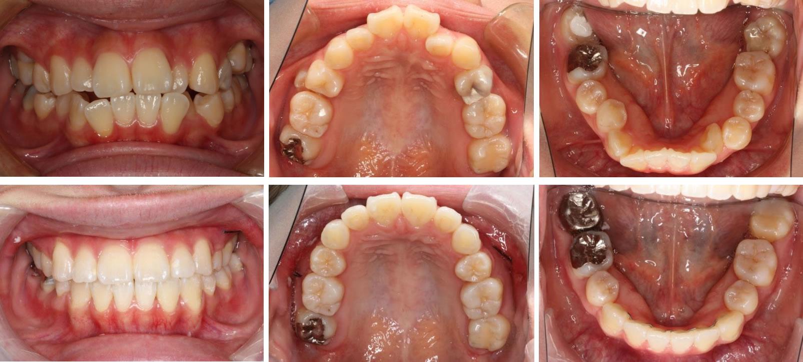 八重歯・叢生の矯正治療例(20代女性 治療期間2年2ヶ月)