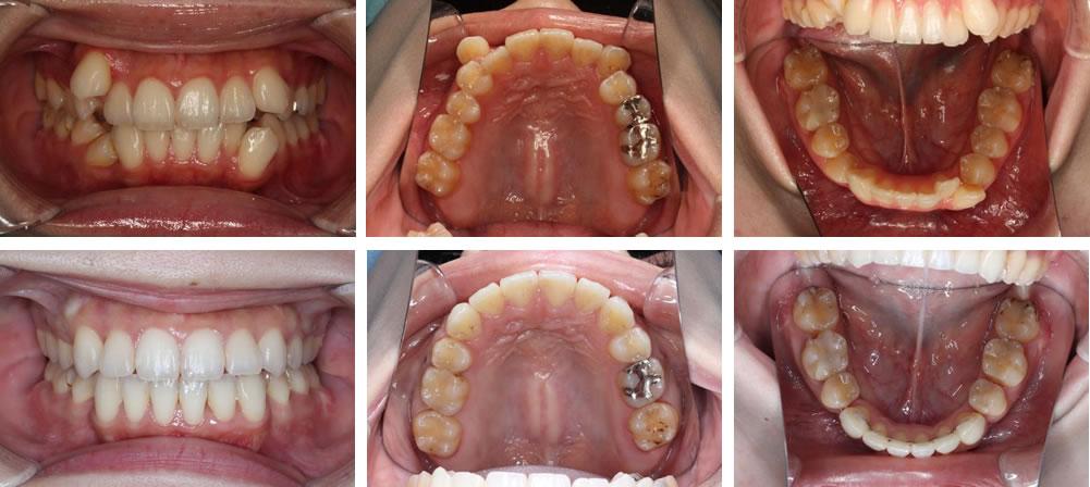 八重歯・叢生の矯正治療例(20代女性 治療期間2年1ヶ月)