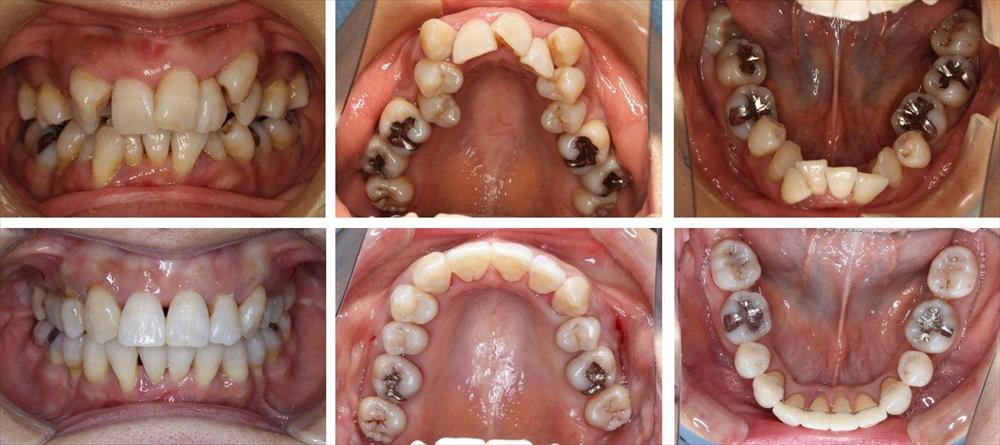 八重歯・叢生の矯正治療例(30代女性 治療期間5年6ヶ月)