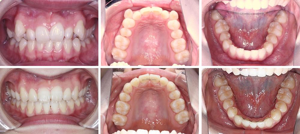 八重歯・叢生の矯正治療例(20代女性 治療期間1年10ヶ月)