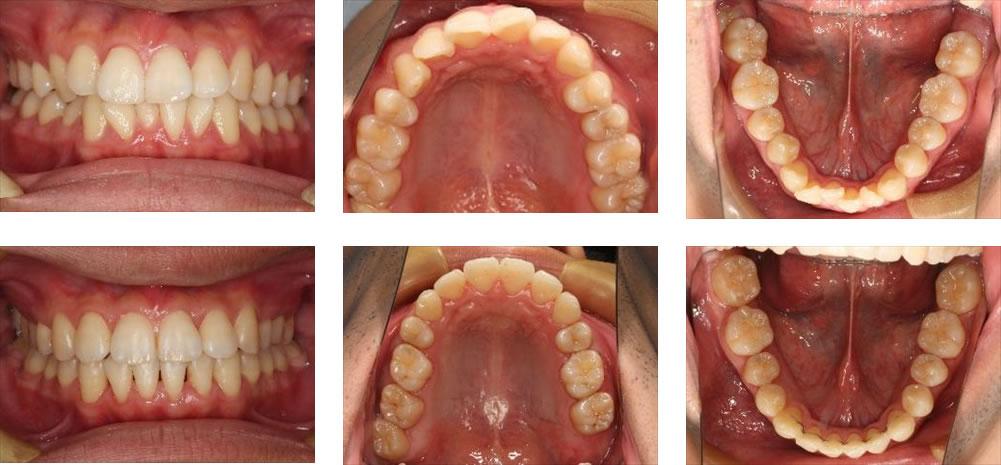 八重歯・叢生の矯正治療例(30代男性 治療期間3年9ヶ月)