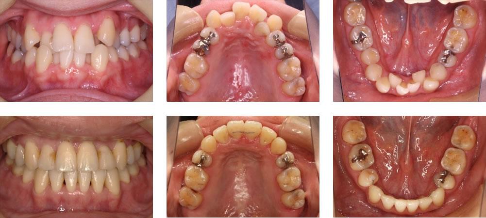 八重歯・叢生の矯正治療例(30代女性 治療期間3年8ヶ月)