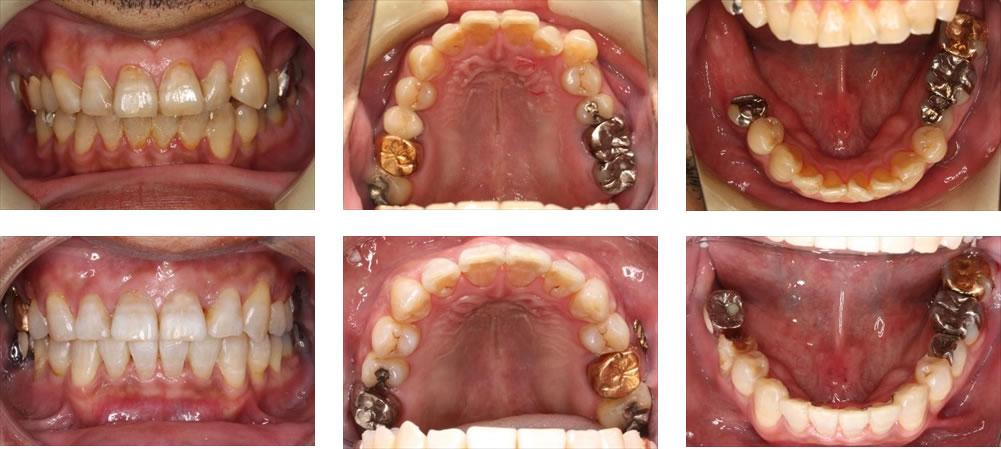 八重歯・叢生の矯正治療例(40代男性 治療期間3年4ヶ月)