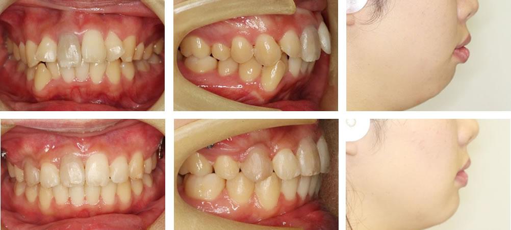 出っ歯の矯正治療例(20代女性 治療期間4年2ヶ月)
