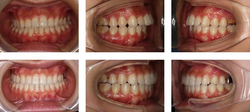 出っ歯の矯正治療例(20代女性 治療期間1年10ヶ月)