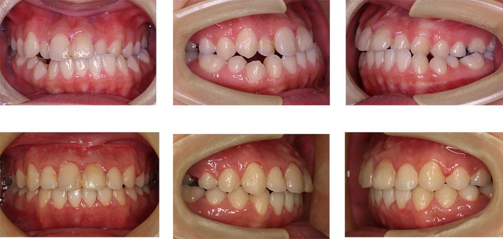 受け口(アゴが出る・下顎前突)の治療例