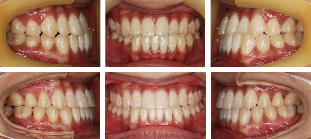 受け口の矯正治療例(10代女性 治療期間1年7ヶ月)