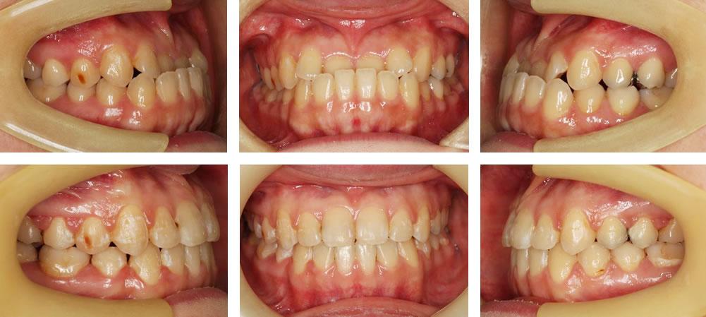 受け口の矯正治療例(30代女性 治療期間2年6ヶ月)