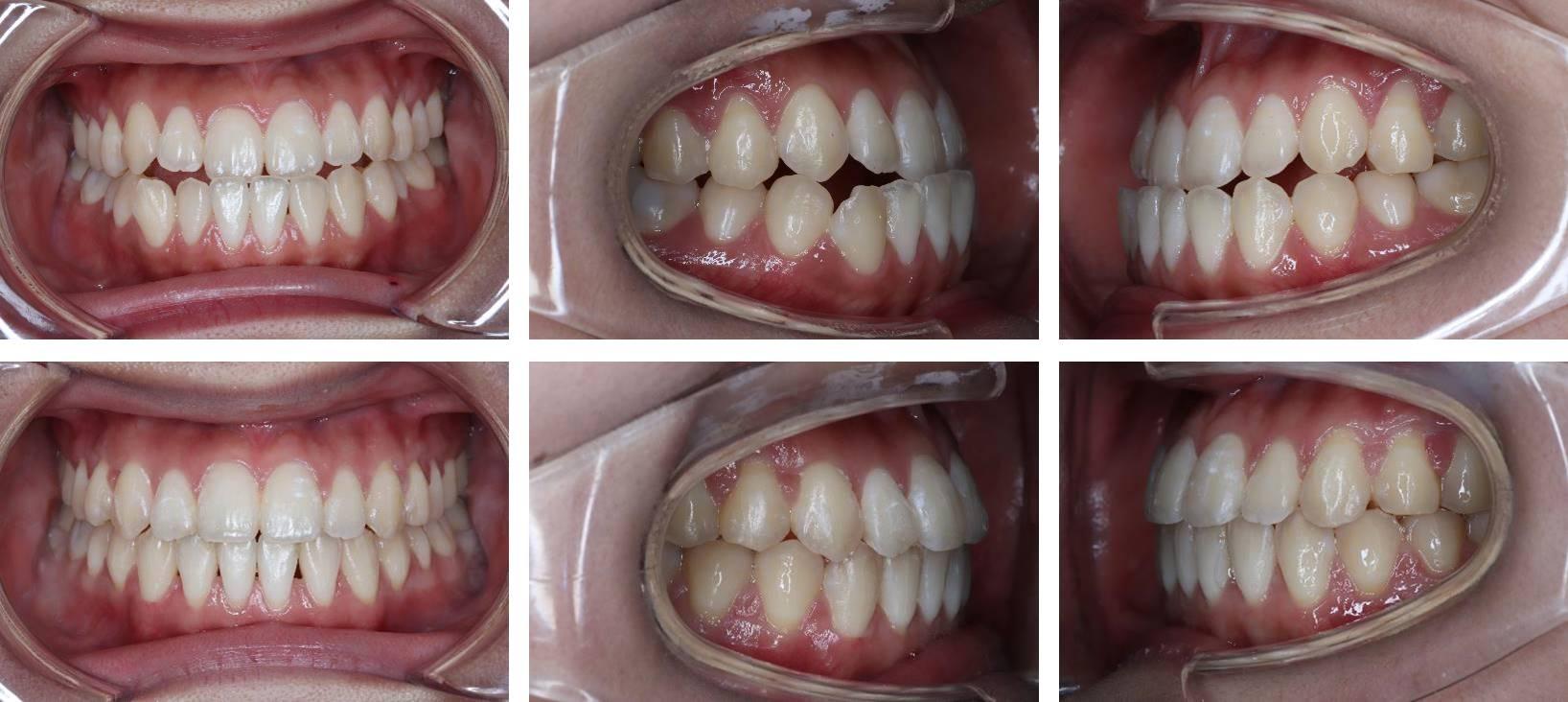反対咬合の矯正治療例(10代女性 治療期間1年3ヶ月)