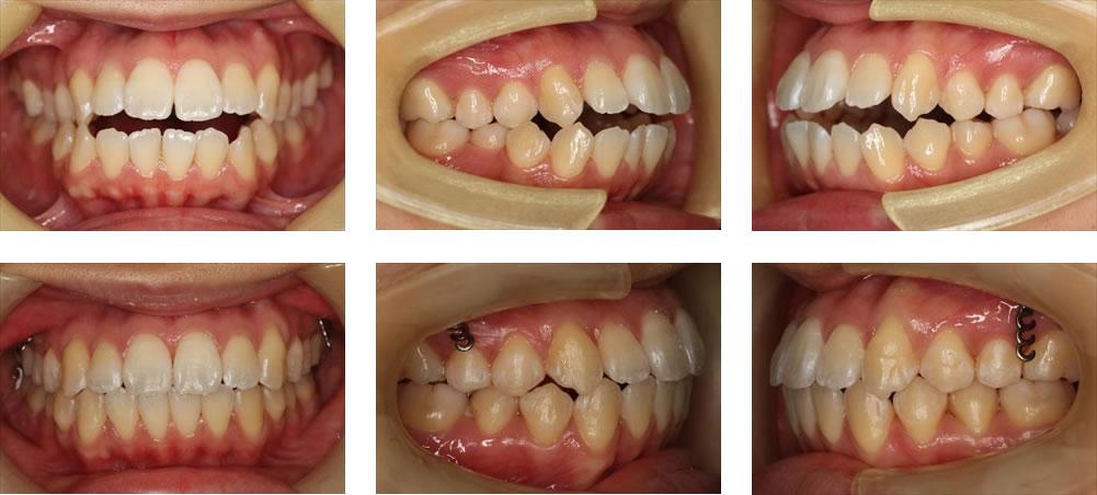 歯を抜かない矯正治療例