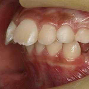 子どもの出っ歯の歯科矯正治療例