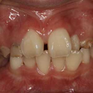 子どもの八重歯・叢生の歯科矯正治療例