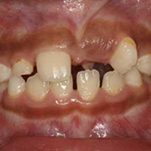 子どものすきっ歯の歯科矯正治療例