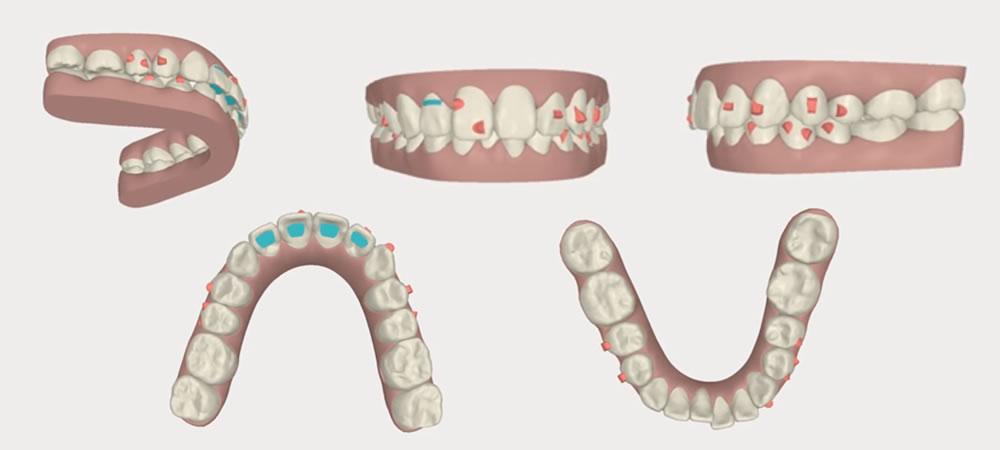 歯を抜くべきか、抜かないべきか