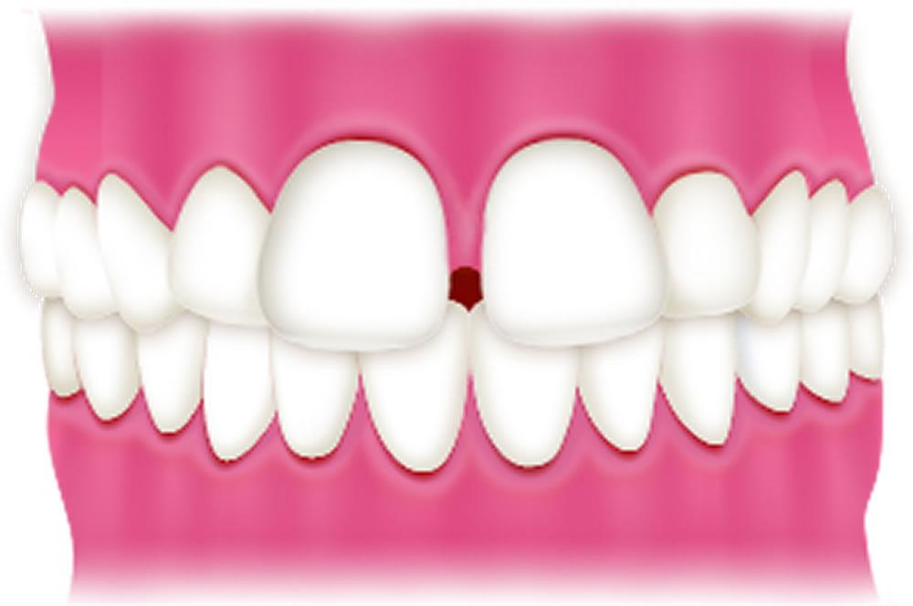 子供のすきっ歯