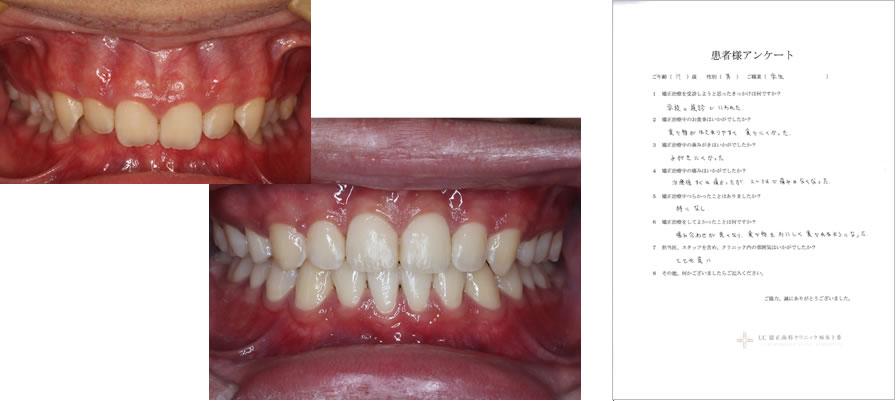 UC矯正歯科クリニック麻布十番の矯正治療体験談6