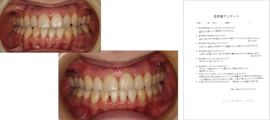 UC矯正歯科クリニック麻布十番の矯正治療体験談12